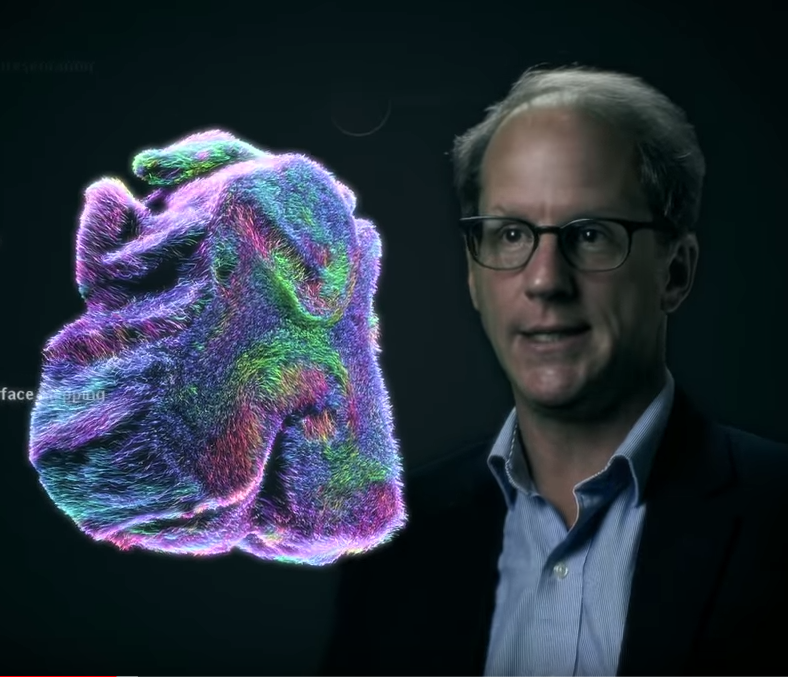 Image of brain and Dr. Van Horn